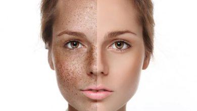اسباب الكلف الجلدي وكيفية علاجه بأفضل الطرق والوقاية منه