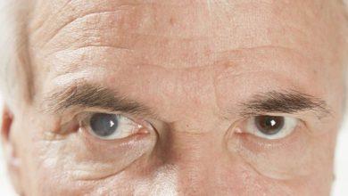 اسباب المياه البيضاء في العين وكيفية الوقاية منها وعلاجها بشكل صحيح
