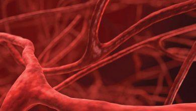 التعرف على الشعيرات الدمويه واعراض نقصها وافضل الادويه لعلاجها