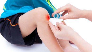 علاج الجروح السطحية وتطهيرها والعناية بها بالطريقة الصحيحة
