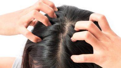 افضل انواع الادويه لعلاج القشرة فى الشعر و معرفه ابرز اسبابها