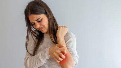 علاج الحكة والهرش الشديد في الجسم وطرق تخفيف الحكة بافضل الطرق المنزلية