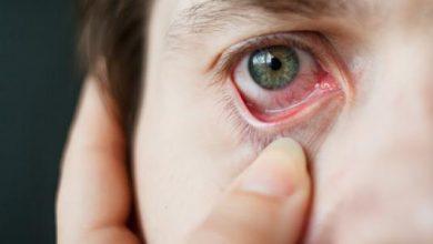 طرق علاج عماص العين بالطرق المنزلية والعلاجية وكيفية التعامل معه