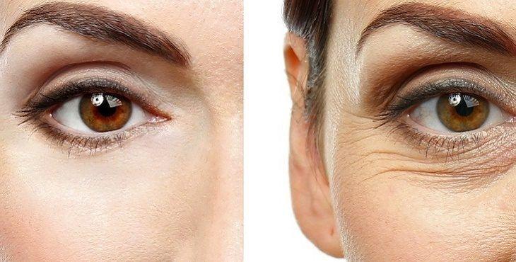 كيفية علاج تجاعيد تحت العين وافضل الطرق الطبيعية للتخلص منها نهائياً