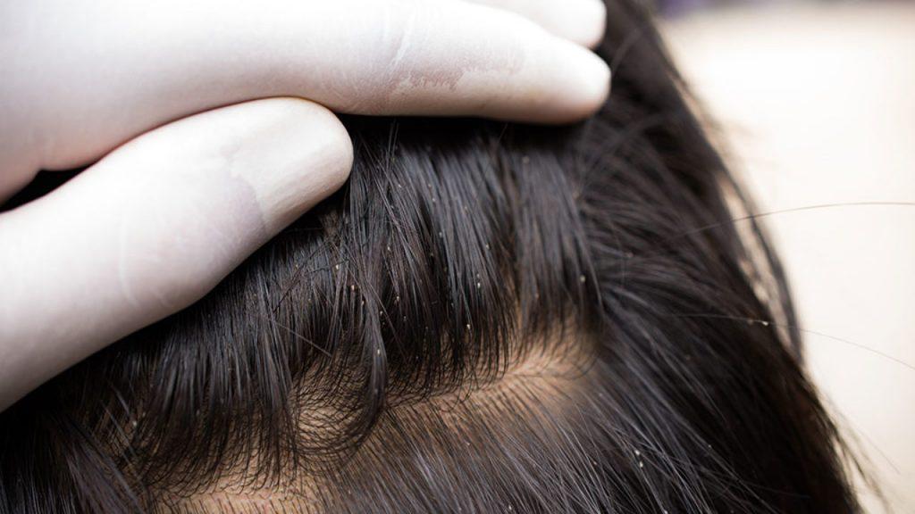 التخلص من قمل الشعر و افضل طرق للوقايه منه