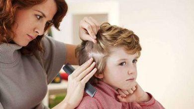 افضل لوسيون لحشرات الشعر وافضل طرق علاجها والوقاية منها