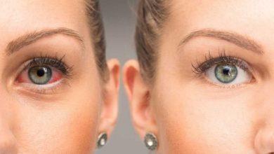 علاج جفاف العين بأفضل الطرق الطبيعية المنزلية وطرق الوقاية من الاصابة بها