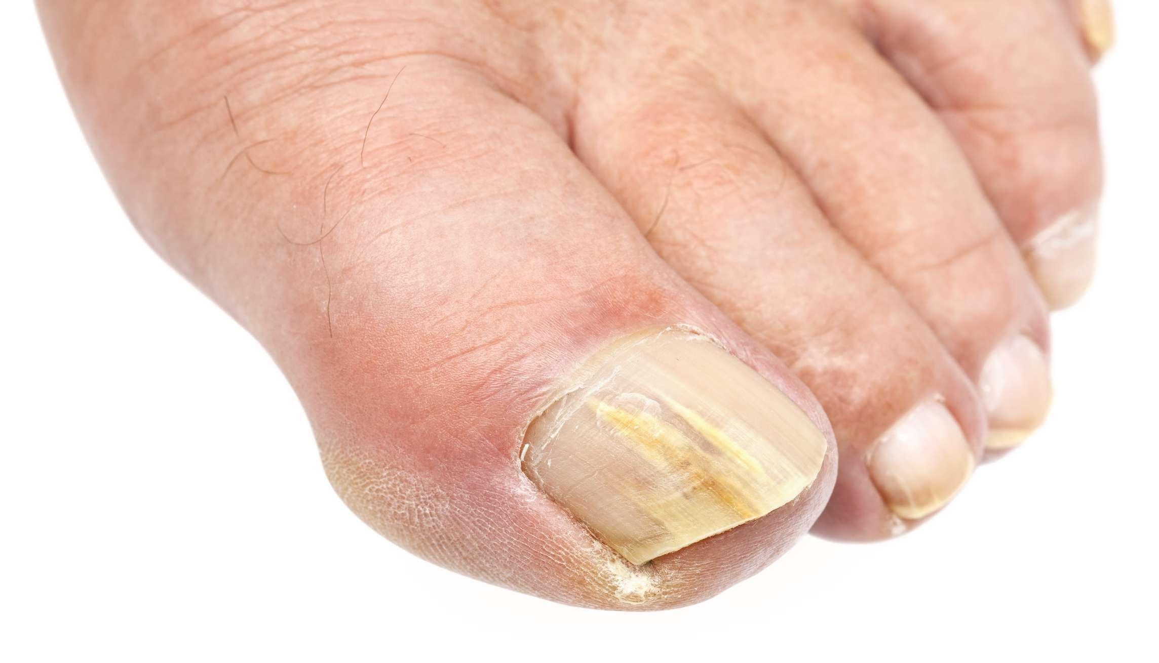 الوقاية من فطريات الاظافر وأهم اسباب الاصابة بها وكيفية علاجها