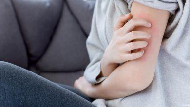 افضل الوصفات الطبيعية لعلاج الجرب منزلياً دون اللجوء الي العلاجات الطبية