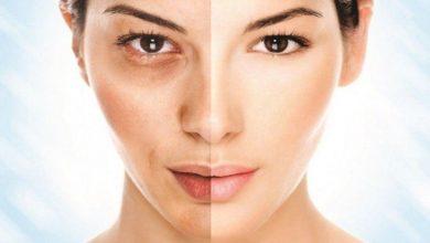 طرق علاج الكلف والتصبغات في الجلد بأفضل الطرق الطبيعية و العلاجية