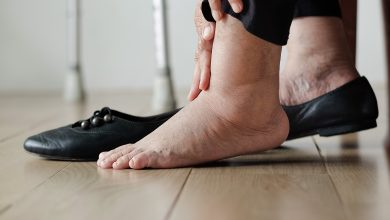 نصائح لعلاج احتباس السوائل في الجسم وكيفية الوقاية من الاصابة بها