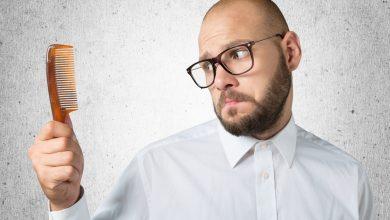 علاج الصلع والتخلص من تساقط الشعر الوراثي وافضل الادوية لها