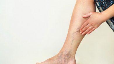 علاج دوالى الساقين ومعرفه افضل الطرق الطبيعيه للتخلص منه