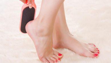 نصائح للتخلص من تشققات القدم وافضل الوصفات المنزلية لترطيب الكعبين