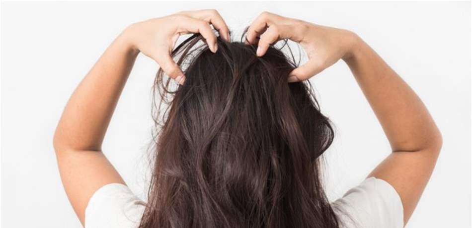 التخلص من اكزيما الشعر و افضل الطرق الفعاله لعلاجها