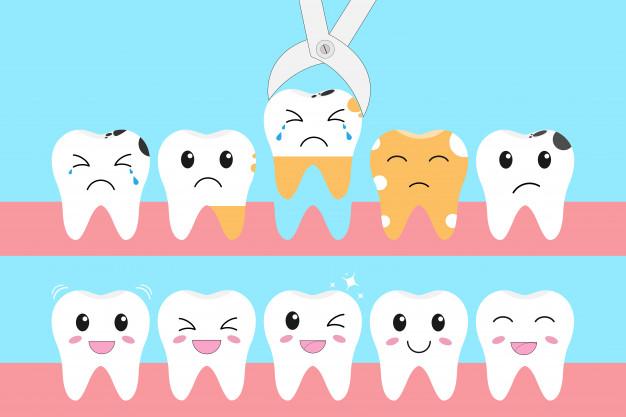 اسباب تسوس الاسنان وافضل الطرق للتخلص من تسوس الاسنان وحماية الاسنان