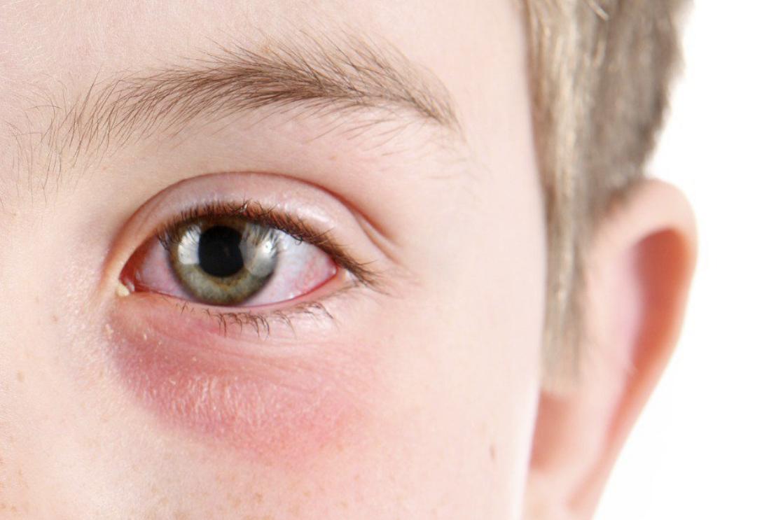 افضل نوع قطره لعلاج تهيج العين واهم النصائح للحفاظ عليها
