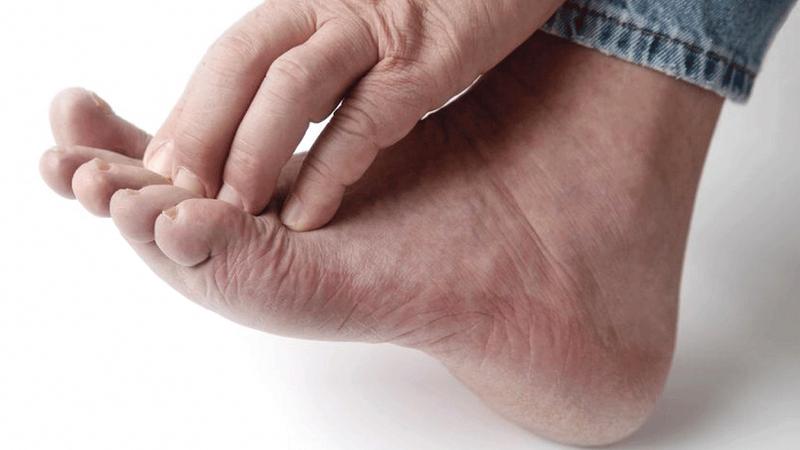 افضل الحلول الطبيعية لعلاج فطريات القدم والتخلص منها نهائياً