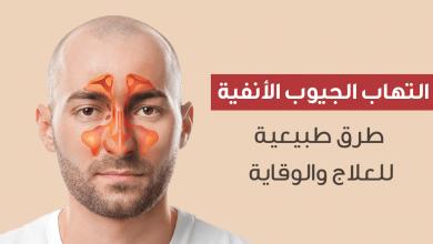اعراض الجيوب الانفية وافضل الطرق الطبيعية لعلاجها والوقاية منها