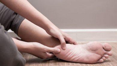 ماهو علاج تشقق كعب القدم واهم النصائح للوقايه منه