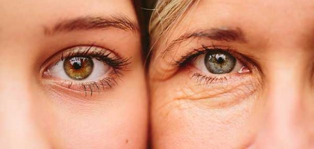 طرق طبيعيه لعلاج تجاعيد تحت العين و الطرق الطبيه الفعاله