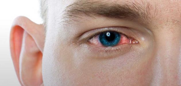 علاج التهابات العين وافضل طرق الوقاية من الاصابة بها وكيفية التعامل معها