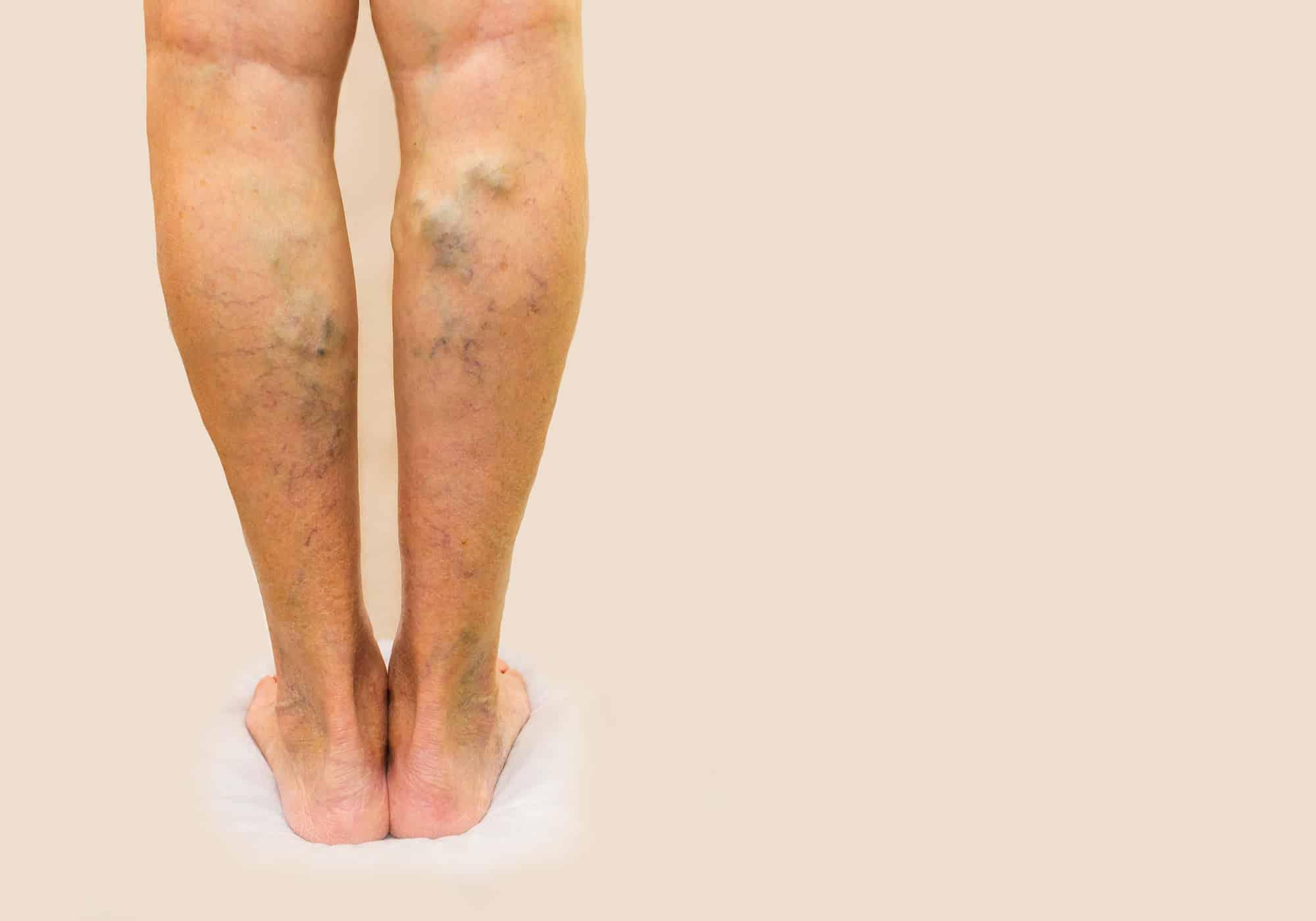التخلص من دوالي الساقين بالطرق الطبيعية وأفضل طرق الوقاية من دوالي الساقين