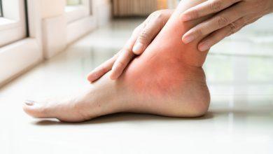 طرق علاج النقرس بالطرق الطبيعية منزلياً والعلاجية واهم النصائح للوقاية منه