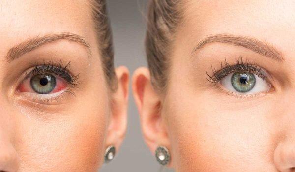 الوقاية من احمرار وتهيج العين وافضل النصائح للحفاظ علي العين