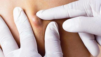 طرق علاج الدمامل بالجسم واهم النصائح للوقاية من الاصابة بها