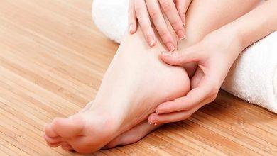 اسباب تشقق القدمين والطرق الطبيعية للتخلص من التشققات وترطيب القدم
