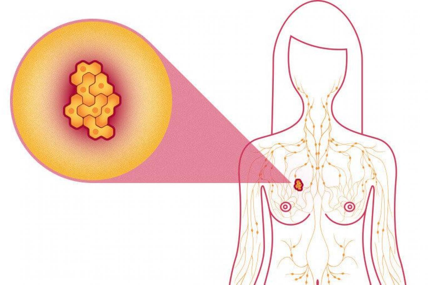الوقاية من سرطان الثدي واهم النصائح للسيطرة علي سرطان الثدي
