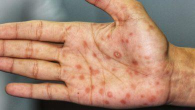 اعراض مرض الزهرى الناتج عن عدوى بكتيريه