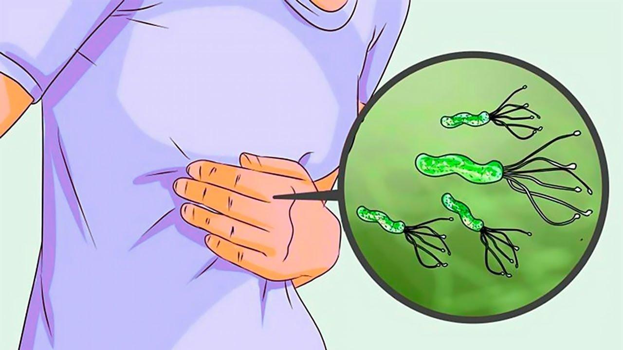 اسباب جرثومة المعدة وطرق علاجها والوقاية من الاصابة بها