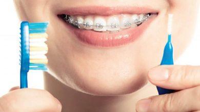 اثار تقويم الاسنان فى الفم و افضل الادويه التى تعالج فطريات الفم