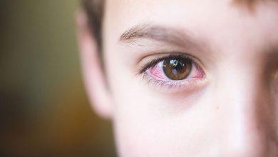 حساسية العين الموسمية واعراضها وكيفية علاجها ونصائح للحد منها
