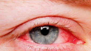 علاج احمرار العين الشديد وطرق الحفاظ علي صحة العينين
