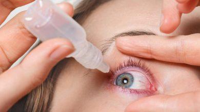 اسباب التهاب الملتحمه الذى يصيب العين و القطرات الفعاله فى علاجها