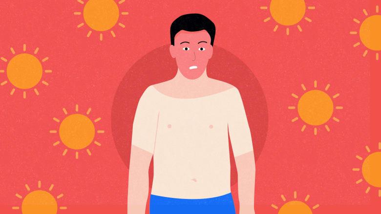 طرق الوقاية من حروق الشمس وافضل الطرق لعلاجها وافضل واقي شمس
