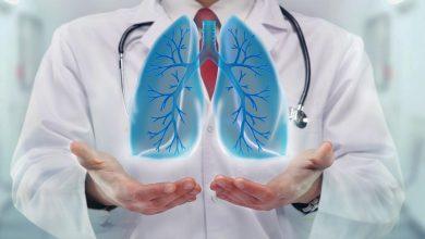 اسباب تكون الماء علي الرئة وافضل طرق علاجها ونصائح للوقاية منها