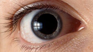 قطرات توسيع حدقه العين و تاثيرها عند وضعها فى العين