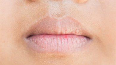 اسباب جفاف الفم و اهميه اللعاب فى الفم و افضل طرق العلاج