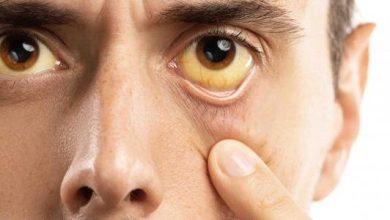 اصفرار العين قد يشير الي حالة مرضية تعرف علي اسبابه وطرق علاجه
