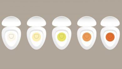 تغير لون البول يشير الي بعض الحالات الصحية تعرف عليها وافضل طرق العلاج