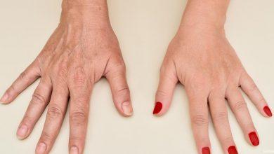وصفات طبيعية للتخلص من تجاعيد اليدين نهائياً وافضل النصائح لتجنب التجاعيد