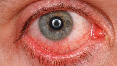 افضل انواع القطرات التى تعالج احمرار العين و طرق الوقايه