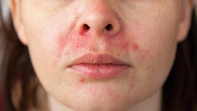 علاج حساسيه الوجه و النصائح المنزليه لتخفيف الاعراض