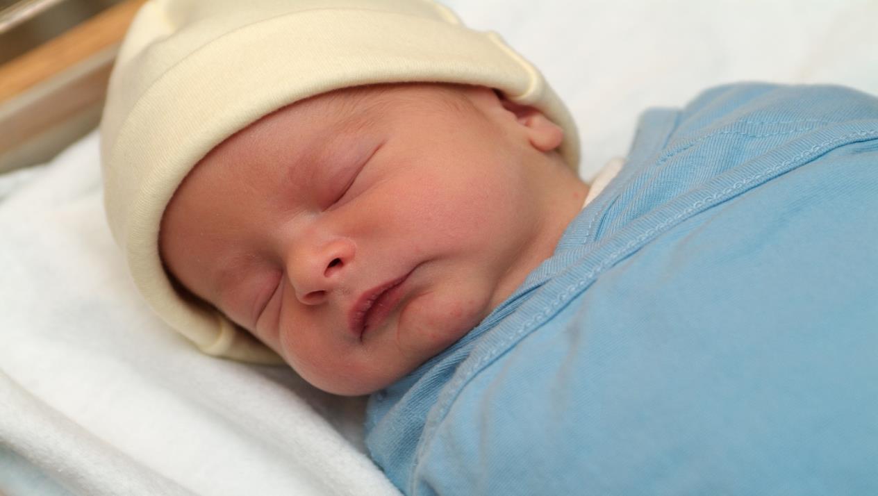 علاج الصفراء عند حديثي الولادة بافضل الطرق الطبيعية والطبية واهم النصائح للتعامل