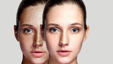 طرق التخلص من تصبغات الجلد واهم النصائح للوقاية من تصبغات البشرة