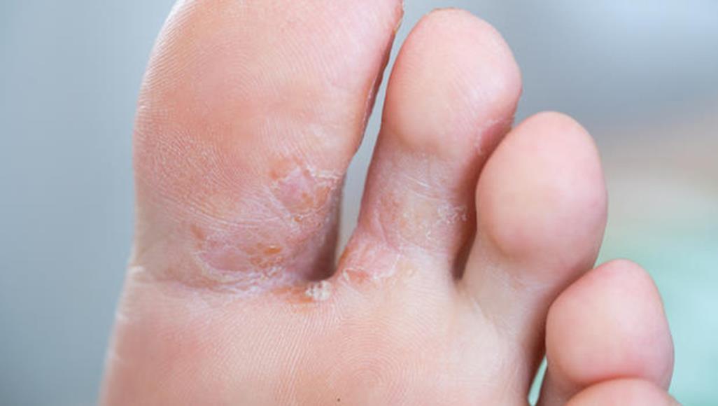 علاج فطريات القدم بافضل الوصفات المنزلية وابرز الاعراض للاصابة بها